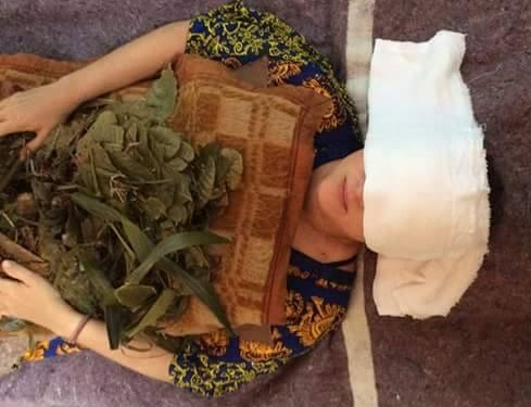 Terapia do Casulo Jalal